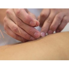 €19 Introduction to Acupuncture Course