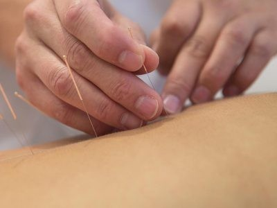 €29 Introduction to Acupuncture Course